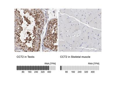 Anti-CCT2 Antibody