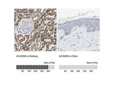 Anti-ACADM Antibody