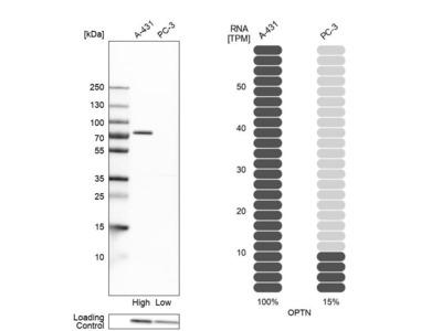 Anti-OPTN Antibody