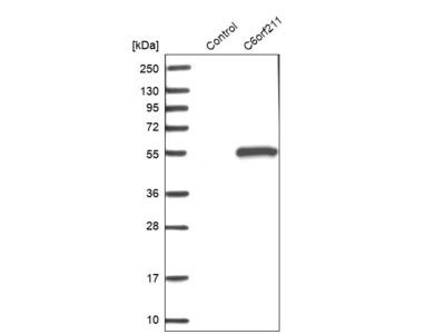 Anti-ARMT1 Antibody