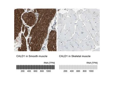 Anti-CALD1 Antibody