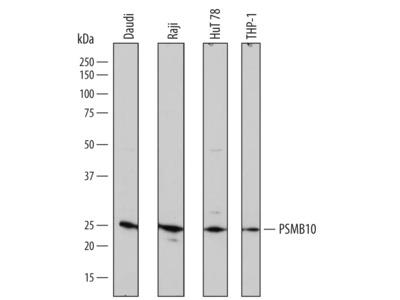 Human PSMB10 / MECL1 Antibody