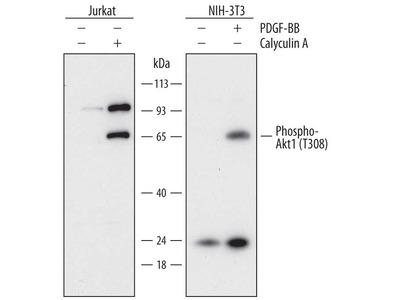 Human Phospho-Akt1 (T308) Antibody