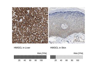 Anti-HMGCL Antibody
