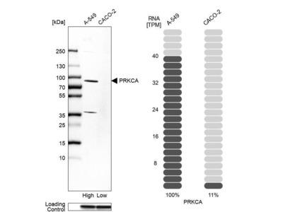 Anti-PRKCA Antibody