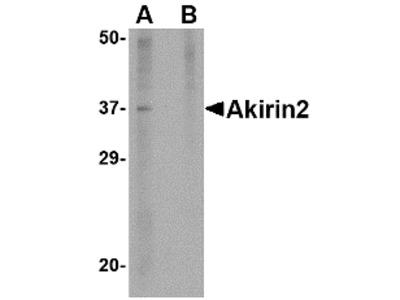 AKIRIN2 Antibody