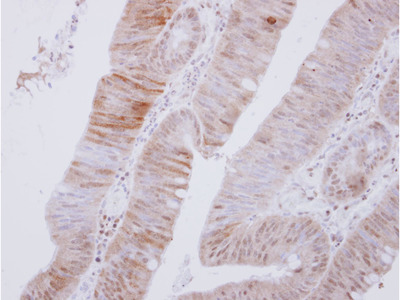 PRKAA2 / AMPK Alpha 2 Polyclonal Antibody