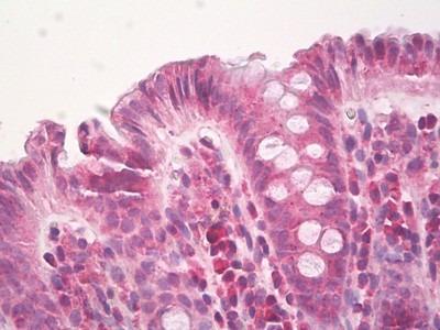 HPSE / Heparanase Antibody