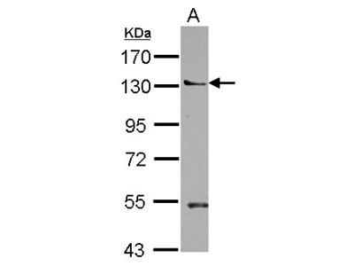 PLEKHA5 Polyclonal Antibody
