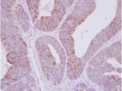 PPP2R3A / PR130 Antibody