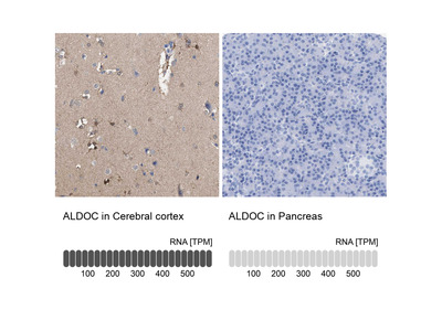 Anti-ALDOC Antibody