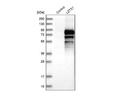 Anti-LZTS1 Antibody