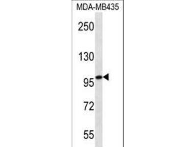 MYO1C Monoclonal Antibody