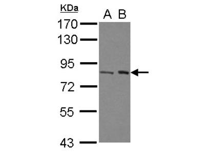 BRAT1 / BAAT1 Polyclonal Antibody