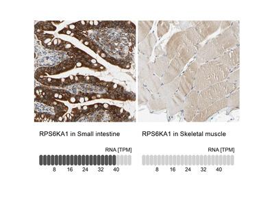 Anti-RPS6KA1 Antibody