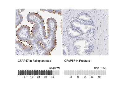 Anti-CFAP57 Antibody
