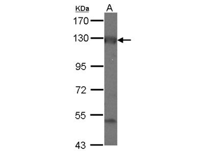 ADCY2 / Adenylate Cyclase 2 Antibody