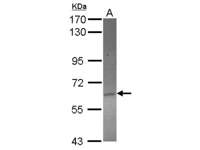 ACOT12 Antibody