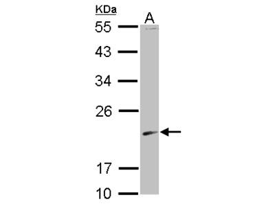 SKP1 Antibody
