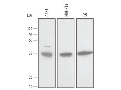Human / Mouse / Rat Annexin A2 Antibody