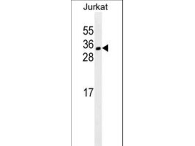 CDCA8 / Borealin Monoclonal Antibody