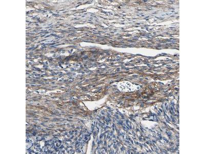 Anti-COL6A3 Antibody