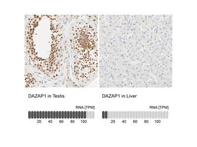 Anti-DAZAP1 Antibody