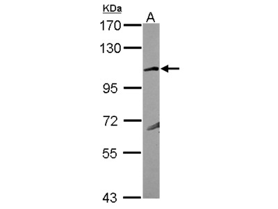 GRIK4 / KA1 Antibody