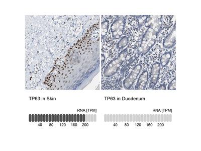 Anti-TP63 Antibody