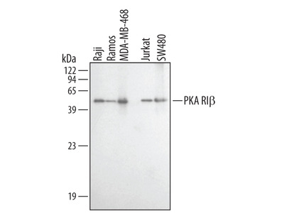Human / Mouse / Rat PKA RI beta Antibody