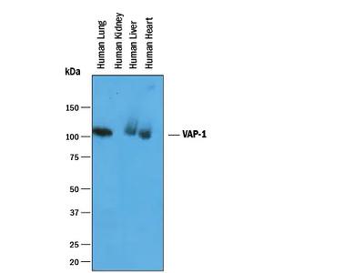 VAP-1 / AOC3 Antibody