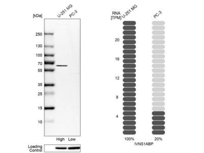 Anti-IVNS1ABP Antibody