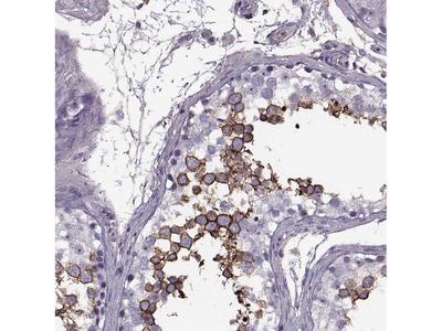 Anti-SLC2A3 Antibody