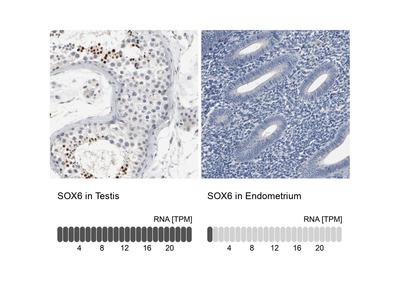 Anti-SOX6 Antibody