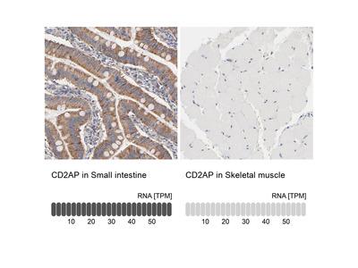 Anti-CD2AP Antibody