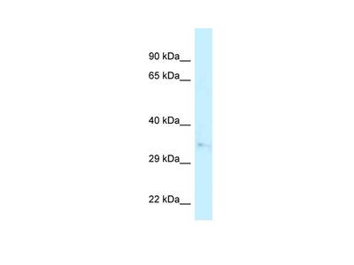 CAPZA2 antibody - N-terminal region (ARP62108_P050)