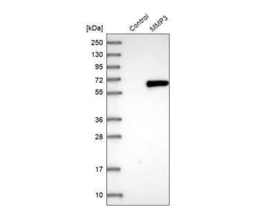 Anti-MMP3 Antibody
