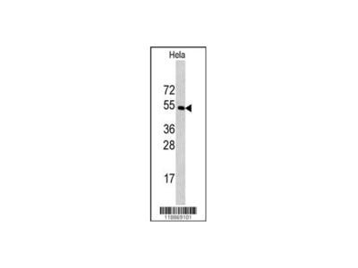 CPE Antibody - C-terminal region (OAAB04735)
