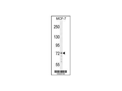 MED25 Antibody - N-terminal region (OAAB00209)
