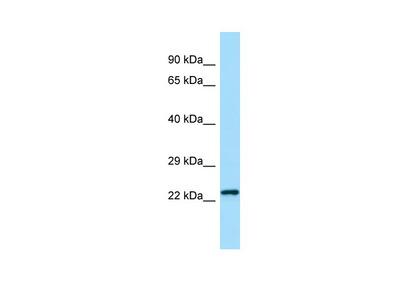 Chmp2b Antibody - N-terminal region (ARP54967_P050)