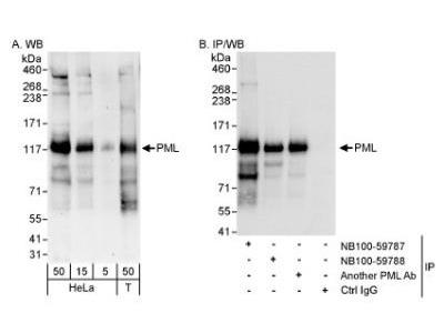 Rabbit Polyclonal PML Protein Antibody