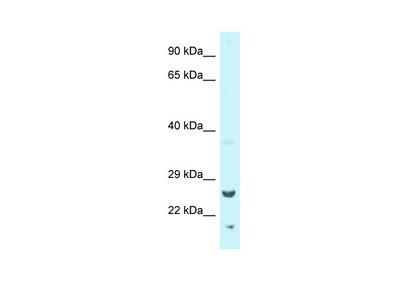 Tk1 antibody - middle region (ARP58541_P050)