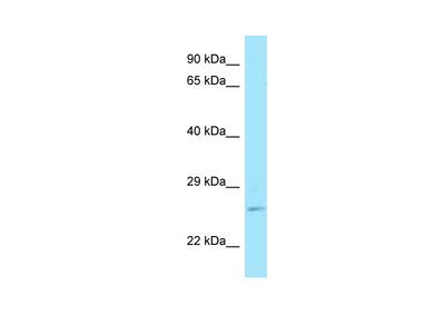 RAB11A antibody - C-terminal region (ARP63742_P050)
