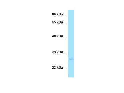 RAB11A antibody - C-terminal region (ARP63743_P050)