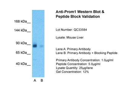 Prom1 antibody - N-terminal region (ARP61144_P050)