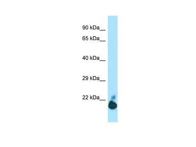 TIGIT Antibody - C-terminal region (ARP66485_P050)