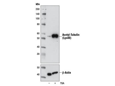 Acetyl-α-Tubulin (Lys40) (6-11B-1) Mouse mAb