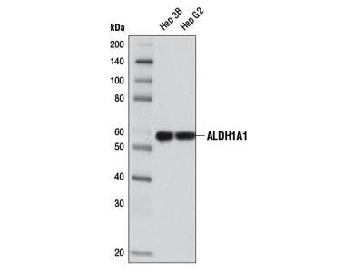 ALDH1A1 (D4R9V) Rabbit mAb