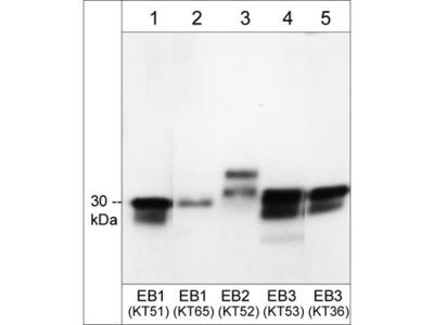 Anti-EB2 Antibody Products   Biocompare com