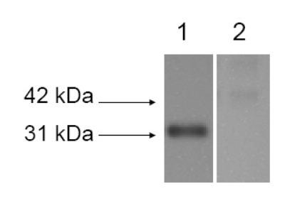 LOX Antibody